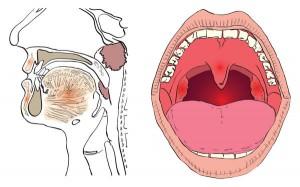 amygdalitida1