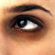 Μαύροι κύκλοι και σακούλες κάτω απο τα μάτια.
