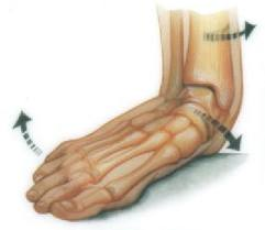 platypodia-Flat Feet