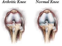 10 Συμβουλές για την οστεοαρθρίτιδα γόνατος