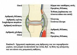arthritika1
