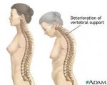 10 Συμβουλές για την οστεοπόρωση