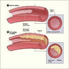 Η χοληστερόλη ή χοληστερίνη είναι μια λιπαρή ουσία και θεωρείται από τον κόσμο λίαν επικίνδυνη και καταστροφική για τον οργανισμό