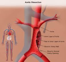 diaxorismos-aortis