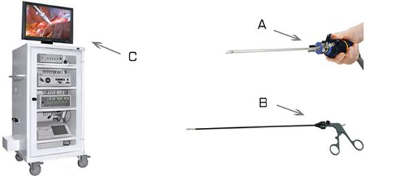 laparoscopic1