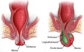 Χρήσιμες Πληροφορίες για τις παθήσεις των Αιμορροΐδων και την Αντιμετώπισή τους.