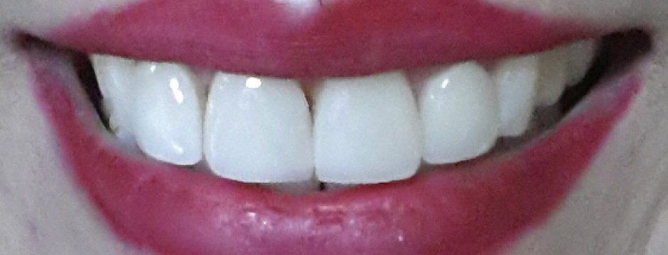 Τί είναι η λεύκανση των δοντιών;