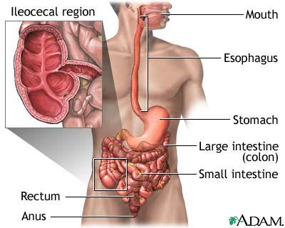 Ποιά είναι η  Νόσος του Crohn;