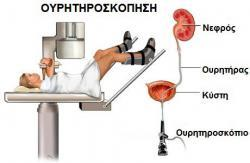 ouritirososkopisi1