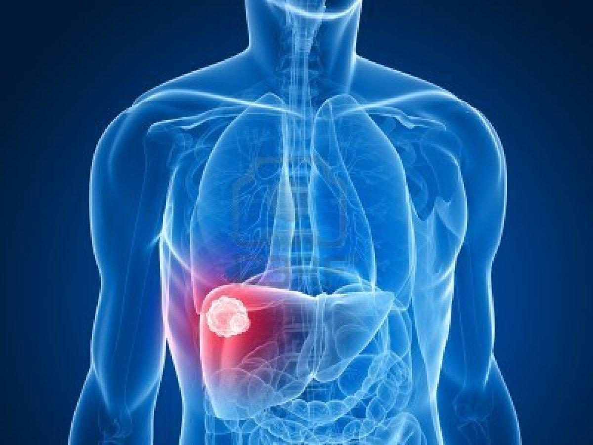 Ο καρκίνος των ηπατικών κυττάρων