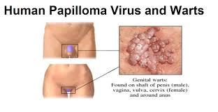 Τι είναι τα κονδυλώματα HPV;