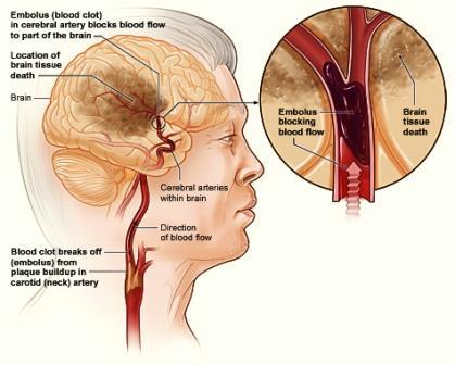 Αγγειακό Εγκεφαλικό Επεισόδιο και Στένωση Καρωτίδας Αρτηρίας