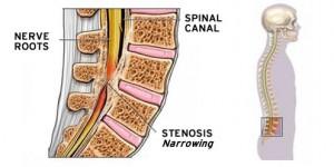 spondyliki stenosi