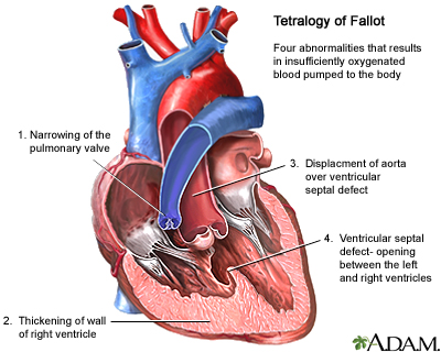 Τετραλογία Fallot