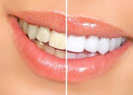 Λευκανση δοντιών