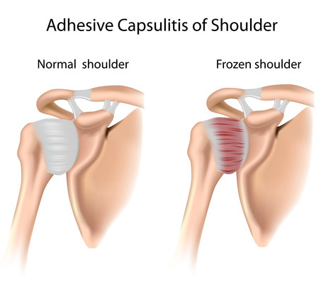 Ο «παγωμένος ώμος» (frozen shoulder) ή συμφυτική θυλακίτις!