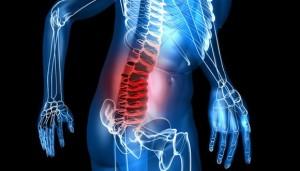 osteoarthropatheia