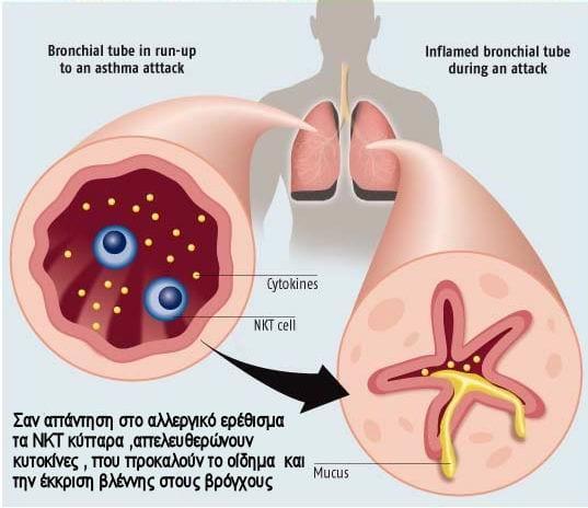 asthma3