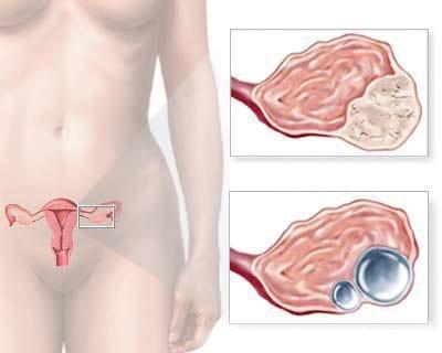 Καρκίνος ωοθηκών