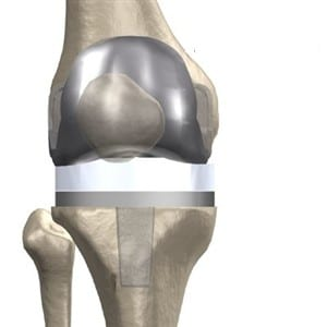 knee.arthroplasty