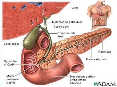 Τι είναι η  Χολοκυστίτιδα