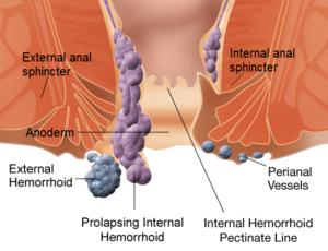 Εσωτερικές αιμορροΐδες πρωκτικό σεξ