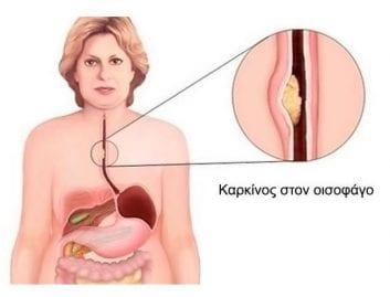 Οισοφαγεκτομή: Πώς αποφεύγεται η μετεγχειρητική επανανοσηλεία;