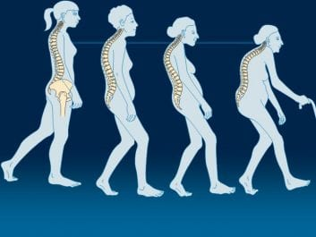 Τι είναι η οστεοπόρωση;