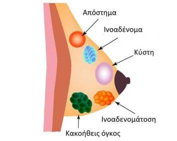 Κατανόηση των προβλημάτων του μαστού.