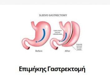 Επιμήκης Γαστρεκτομή (Sleeve Gastrectomy)