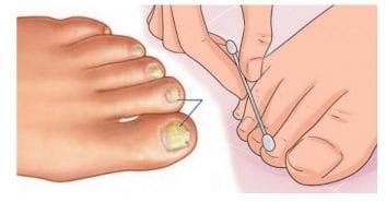 Πώς θα απαλλαγείτε από τους μύκητες στα νύχια…