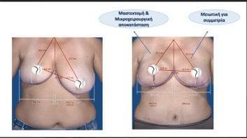 Αποκατάσταση μαστού (μετά από αφαίρεση λόγω καρκίνου)