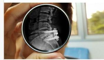 Αφαίρεση όρου: Σπονδυλική Στένωση Σπονδυλική Στένωση